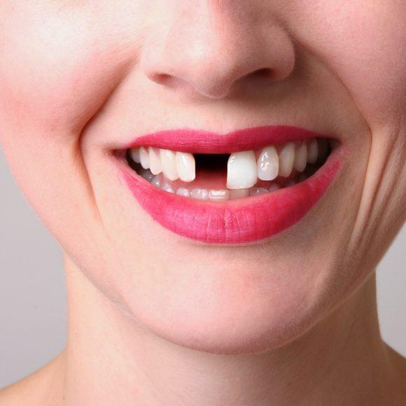 Netekote vieno ar kelių dantų? Ką daryti?