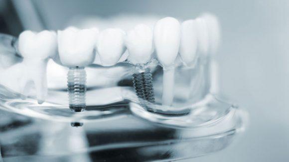 Kaip elgtis po implantacijos