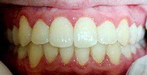 Po ortodontinio gydymo