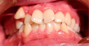 Prieš ortodontinį gydymą