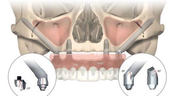 NobelZygoma implantai